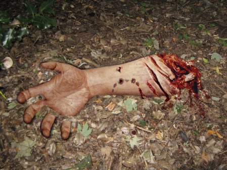Photo of severed human arm taken by Det. Kate Reed